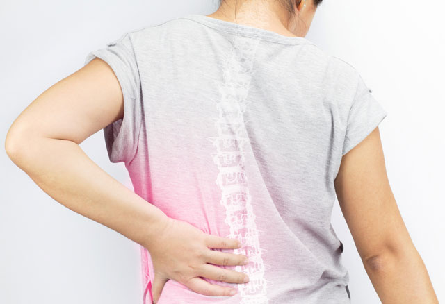 Fosamax (Alendronate) for Osteoporosis