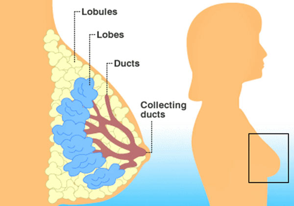 breast-cancer-recurrence